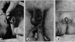 Аномалии мочеиспускательного канала - основы практической урологии детского возраста