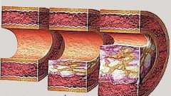 Атеросклероз и диабет