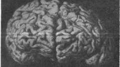 Демиелинизирующий рассеянный энцефаломиелит с псевдопаралитическим синдромом - ошибки диагностики психических заболеваний