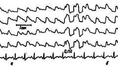Динамика рэг во время ангиографии - клиническая реоэнцефалография