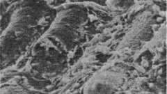 Физиология кишечной микрофлоры - дисбактериоз у детей