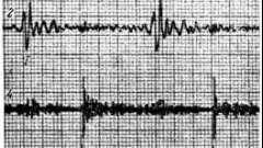 Фонокардиографичевкая симптоматика комбинированных клапанов аорты - звуковая симптоматика приобретенных пороков сердца