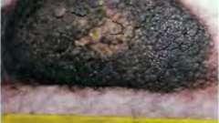 Фото меланомы - меланома кожи