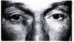 Хронический катаральный простой дакриоцистит - болезни слезных органов