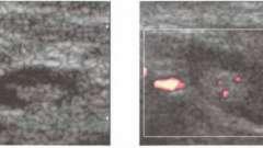 Исследование ультразвуковое лимфатических узлов