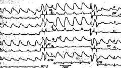 Изменения рэг при сочетанных поражениях сонной и позвоночной артерий - клиническая реоэнцефалография