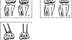 Коленный сустав, вальгусные и варусные искривления