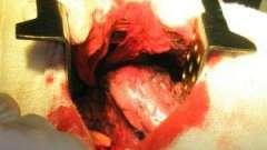 Кровотечение в брюшную полость