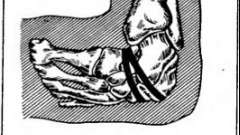 Куслика серповидная резекция стопы