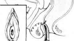 Лечение врожденных свищей при нормально сформированном заднем проходе - хирургия пороков развития толстой кишки у детей