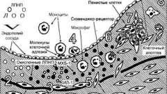 Начальные стадии развития атеросклероза - патоморфология и патогенез атеросклероза