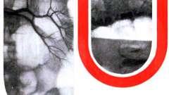 Неотложная рентгенодиагностика острых заболеваний органов брюшной полости