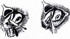 Операции на слезной железе - болезни слезных органов