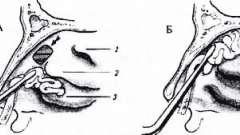 Операции на слезном мешке - болезни слезных органов