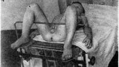 Операция по методу дюамеля - болезнь фавалли—гиршспрунга у детей
