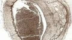 Патология интракраниальных отделов магистральных артерий головы и поверхности мозга - патология головного мозга при атеросклерозе и артериальной гипертонии