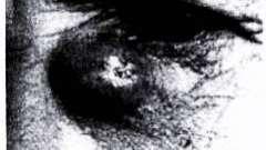 Патология слезного мешка и носослезного протока - болезни слезных органов