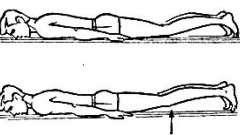 Переломы в грудном и поясничном отделах позвоночника