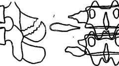 Повреждения грудных и поясничных позвонков - рентгенодиагностика заболеваний позвоночника
