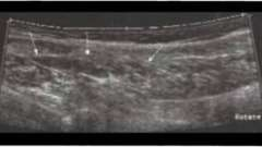 Повреждения мышц - суставы и мышцы ультразвуковое исследование