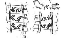 Raillietina parviuncinata - давэнеаты - raillietina