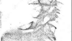 Синдром клиипеля—фейля—шпренгеля - клинико-рентгенологическая диагностика дисплазий скелета