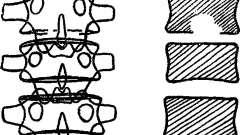 Спондилит - рентгенодиагностика заболеваний позвоночника