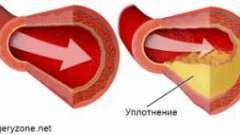 Уплотнение артерий