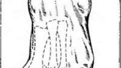 Вальгусная деформация i пальца стопы