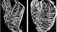 Вены сердца - клиническая анатомия сердца