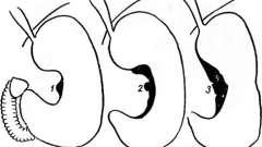 Выпячивание стенки желудка - ниша